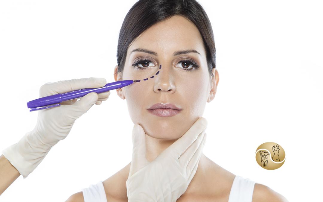 Blefaroplastia: Procedimento para melhorar a aparência da região dos olhos