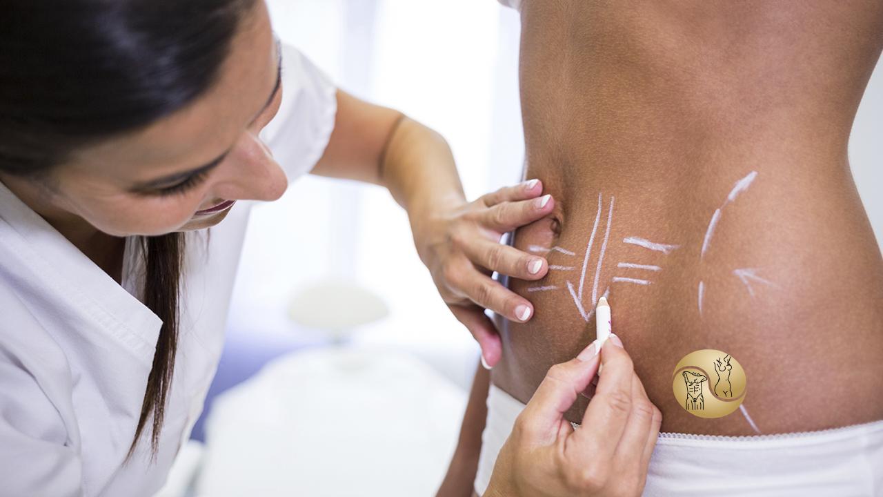 lipoaspiração - na imagem uma médica fazendo algumas marcações na parte da barriga de uma mulher para a cirurgia